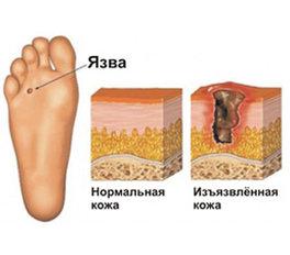 img_285x250_Diabetic_foot_rdax_264x232_85